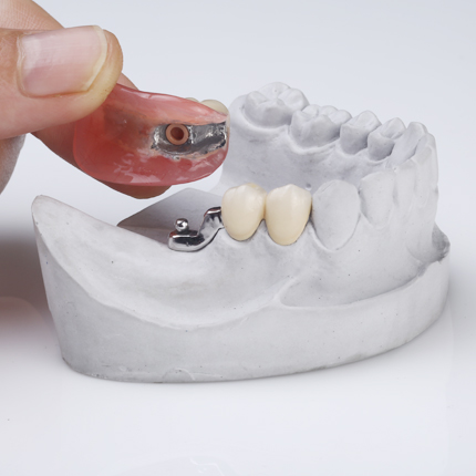 partial removable denture with lock mechanism