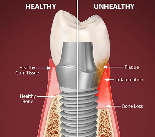 Gum Diseases, Peri Implantitis