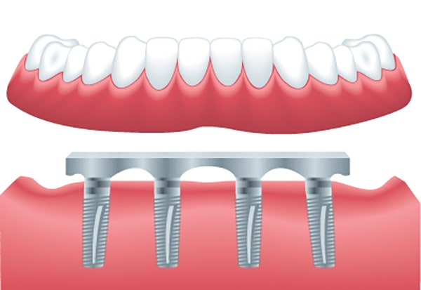 Bar-Retained denture on implants